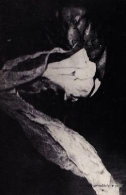 Kollapszus orv (1974)